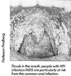 Thrush in the mouth: people with HIV infection/ AIDS are particularly at risk from this common oral infection.