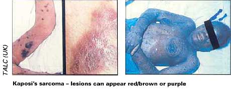 Kaposi's sarcoma - lesions can appear red/brown or purple
